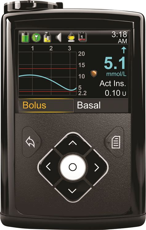 Up Close with Medtronic's New MiniMed 640G System in